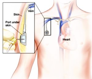 Diagram of Port-a-cath